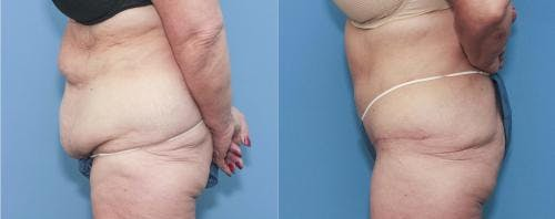 Tummy Tuck Gallery - Patient 58172413 - Image 3