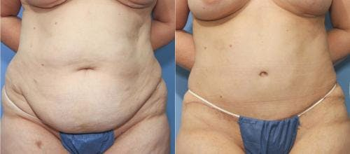 Tummy Tuck Gallery - Patient 58172414 - Image 1