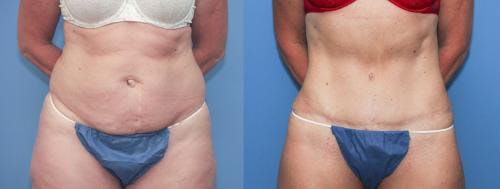 Tummy Tuck Gallery - Patient 58172415 - Image 1