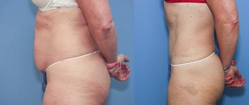 Tummy Tuck Gallery - Patient 58172415 - Image 2