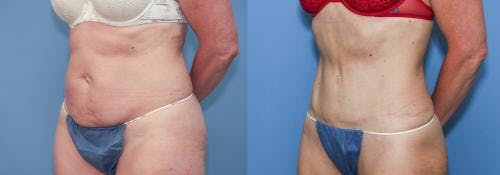 Tummy Tuck Gallery - Patient 58172415 - Image 3