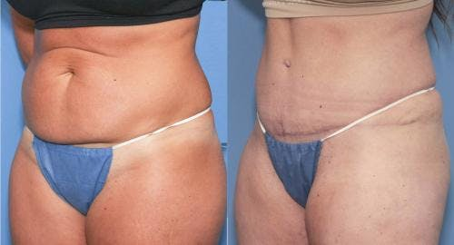 Tummy Tuck Gallery - Patient 58172416 - Image 2