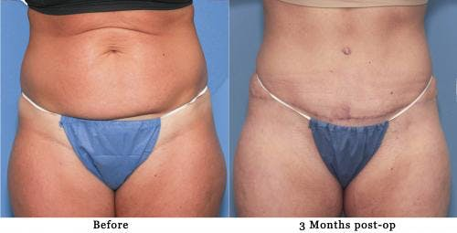 Tummy Tuck Gallery - Patient 58172416 - Image 1