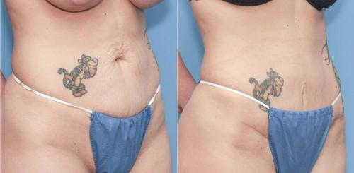 Tummy Tuck Gallery - Patient 58172417 - Image 1