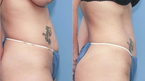 Tummy Tuck Gallery - Patient 58172417 - Image 3