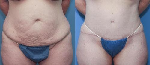 Tummy Tuck Gallery - Patient 58172418 - Image 2