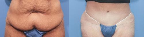 Tummy Tuck Gallery - Patient 58172419 - Image 1