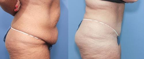 Tummy Tuck Gallery - Patient 58172419 - Image 3