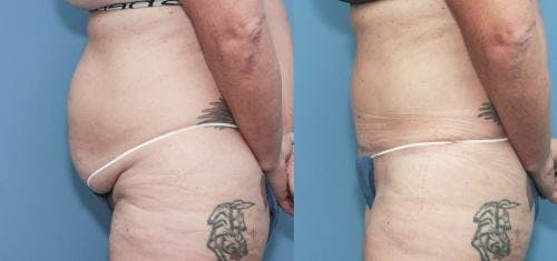 Tummy Tuck Gallery - Patient 58172421 - Image 1