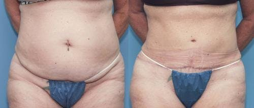 Tummy Tuck Gallery - Patient 58172421 - Image 3
