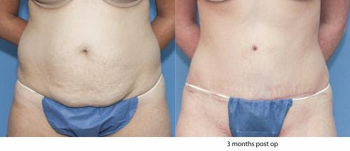 Tummy Tuck Gallery - Patient 58172422 - Image 1
