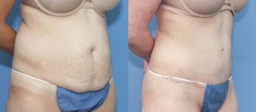 Tummy Tuck Gallery - Patient 58172422 - Image 3