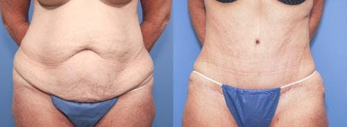 Tummy Tuck Gallery - Patient 58172423 - Image 1