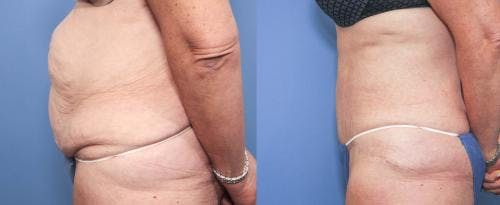 Tummy Tuck Gallery - Patient 58172423 - Image 2