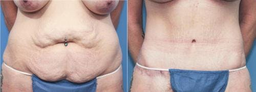 Tummy Tuck Gallery - Patient 58172424 - Image 1