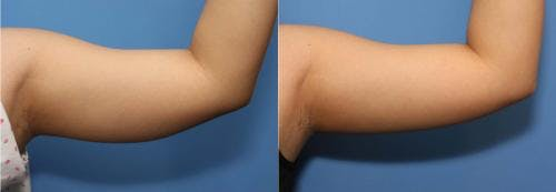 Arms Gallery - Patient 58178477 - Image 1