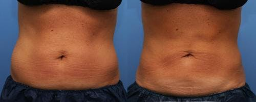 Body Gallery - Patient 58178497 - Image 1