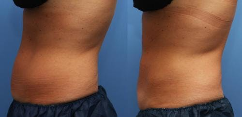 Body Gallery - Patient 58178497 - Image 3