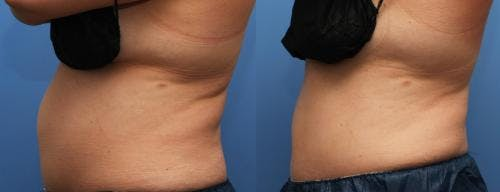 Body Gallery - Patient 58178498 - Image 3