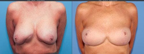Breast Implant Revision Gallery - Patient 58179100 - Image 1