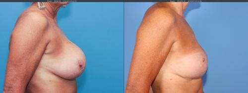 Breast Implant Revision Gallery - Patient 58179100 - Image 2