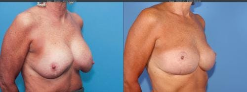 Breast Implant Revision Gallery - Patient 58179100 - Image 3