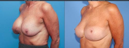 Breast Implant Revision Gallery - Patient 58179100 - Image 4