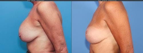 Breast Implant Revision Gallery - Patient 58179100 - Image 5