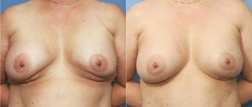 Breast Implant Revision Gallery - Patient 58179101 - Image 1