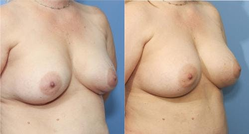 Breast Implant Revision Gallery - Patient 58179101 - Image 2