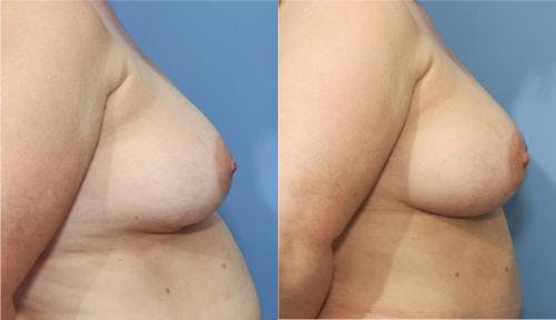 Breast Implant Revision Gallery - Patient 58179101 - Image 3