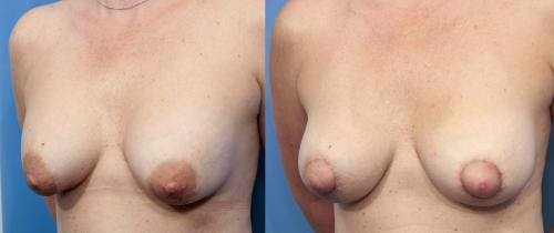 Breast Implant Revision Gallery - Patient 58179110 - Image 1