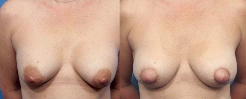 Breast Implant Revision Gallery - Patient 58179110 - Image 2