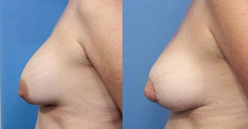 Breast Implant Revision Gallery - Patient 58179110 - Image 3