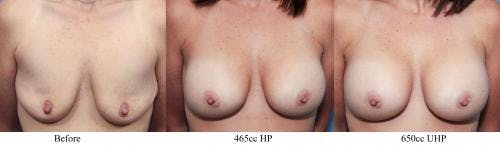 Breast Implant Revision Gallery - Patient 58179111 - Image 1