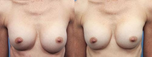 Breast Implant Revision Gallery - Patient 58179112 - Image 1