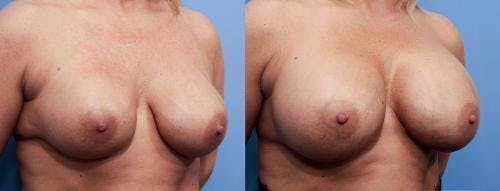 Breast Implant Revision Gallery - Patient 58179114 - Image 2