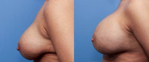 Breast Implant Revision Gallery - Patient 58179114 - Image 3