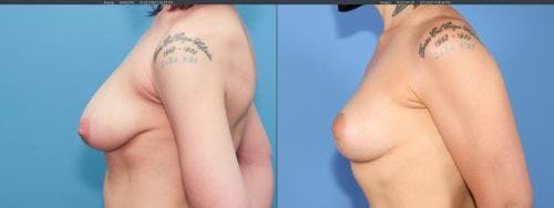 Breast Lift Gallery - Patient 58179115 - Image 2
