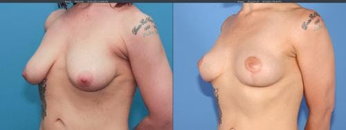 Breast Lift Gallery - Patient 58179115 - Image 3