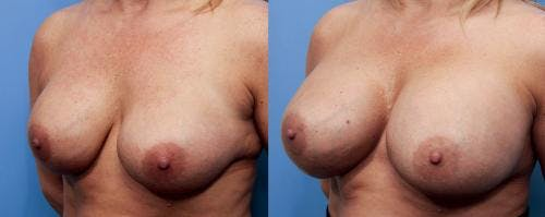 Breast Implant Revision Gallery - Patient 58179114 - Image 4