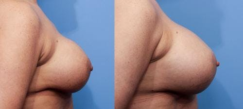 Breast Implant Revision Gallery - Patient 58179114 - Image 5