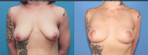 Breast Lift Gallery - Patient 58179115 - Image 1