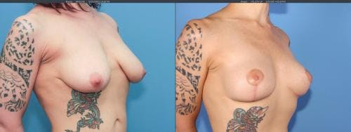 Breast Lift Gallery - Patient 58179115 - Image 4