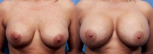 Breast Implant Revision Gallery - Patient 58179114 - Image 1