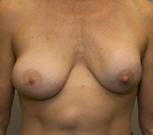 Breast Implant Revision Gallery - Patient 58179116 - Image 1