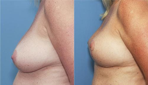 Breast Lift Gallery - Patient 58179117 - Image 2