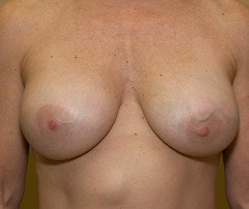 Breast Implant Revision Gallery - Patient 58179116 - Image 2