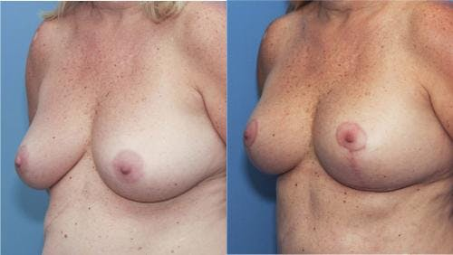 Breast Lift Gallery - Patient 58179117 - Image 3