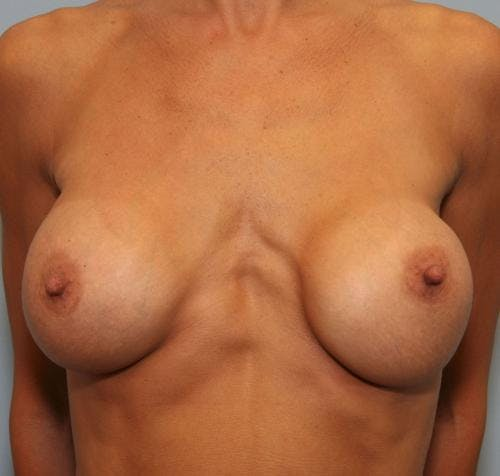 Breast Implant Revision Gallery - Patient 58179119 - Image 1